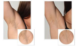 Laser Hair Removal Lexington Kentucky By Cosmetic